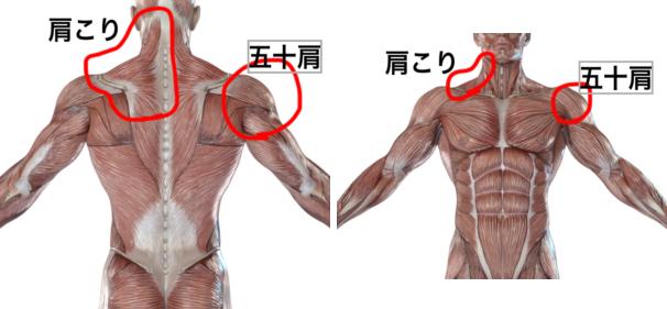 五十肩の痛みの位置