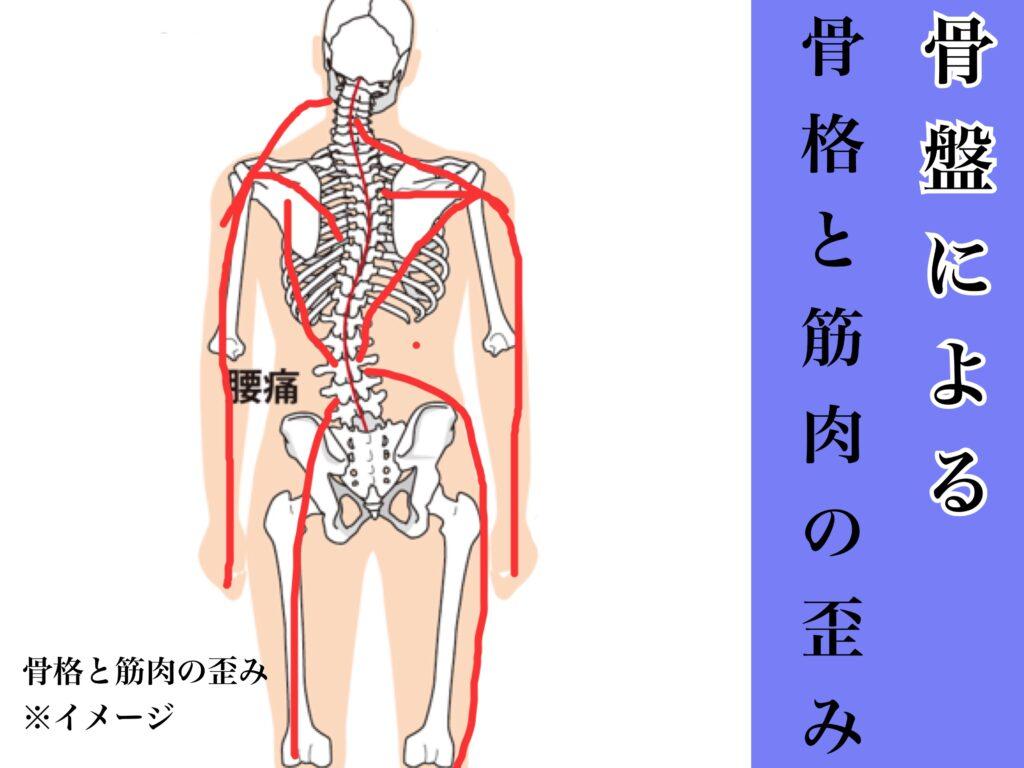 骨盤の歪みによる五十肩