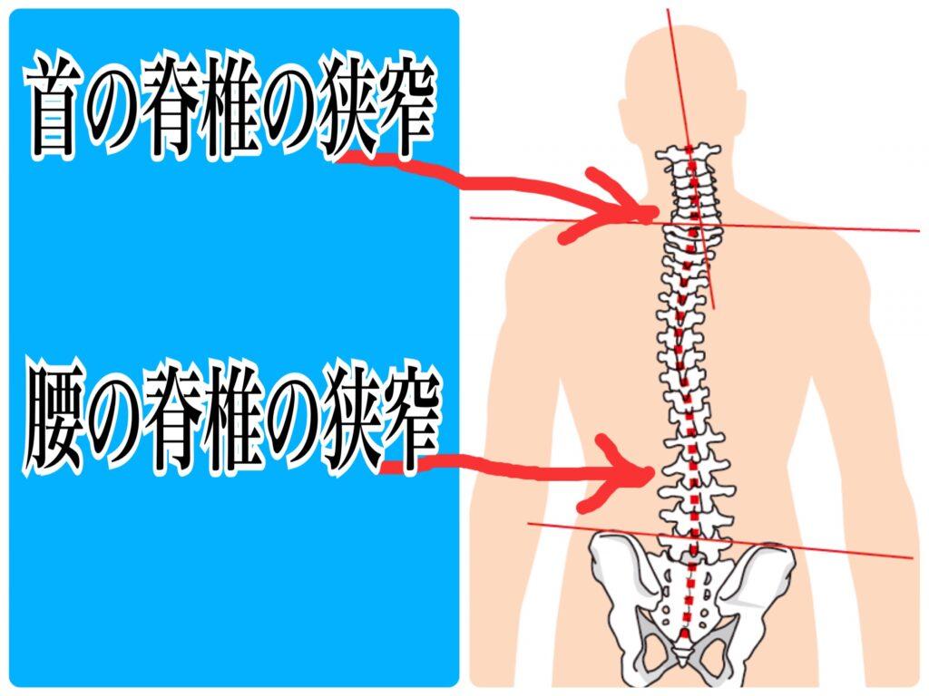 脊椎間狭窄症