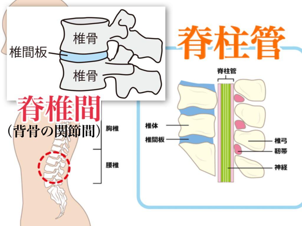 脊柱管狭窄症と脊椎間狭窄症の違い